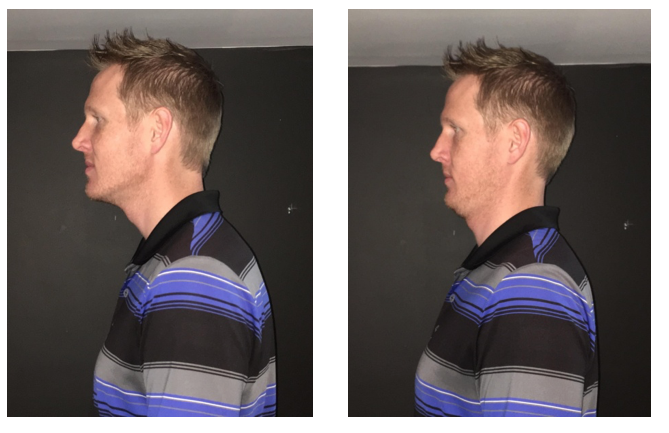 Chin retraction exercise